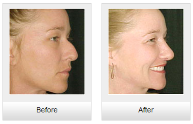 nose reshaping in chandigarh