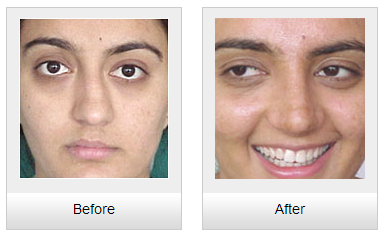 rhinoplasty for crooked nose